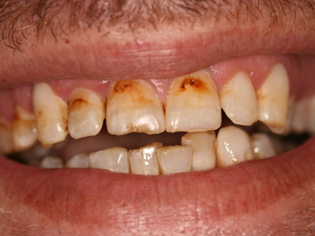 Restorative & Cosmetic Dentistry | Atco, NJ: Kelly Dental Arts